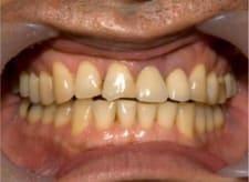 港区 虎ノ門 虎ノ門ワールドゲート歯科 神谷町駅前 左上真ん中の歯茎が腫れた