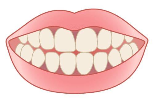 港区 虎ノ門 虎ノ門ワールドゲート歯科 神谷町駅前 ガムピーリング 【黒ずんだ歯茎】