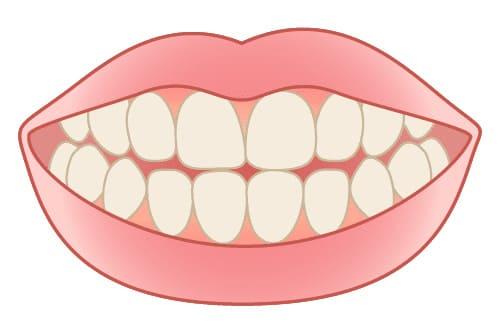 港区 虎ノ門 虎ノ門ワールドゲート歯科 神谷町駅前 ガムピーリング 【一般的な歯茎】